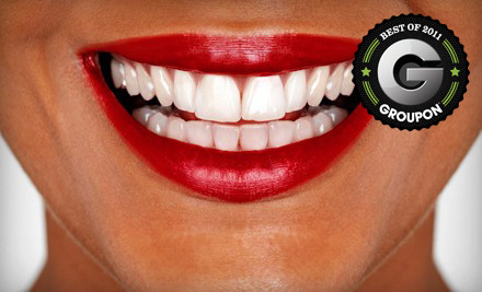 75% Off Teeth Whitening in Chesapeake