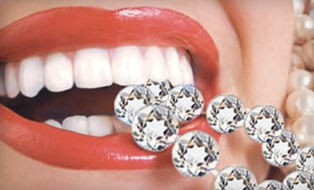 Icing Teeth Whitening - Icing Teeth Whitening in