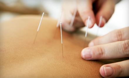 60-Minute Acupuncture Session (a $90 value) - Virginia University of Oriental Medicine in Fairfax