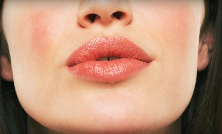Good for Juvederm Lip Treatments for Top and Bottom Lips (a $1,500 value) - Norman Rowe, M.D. in Manhattan