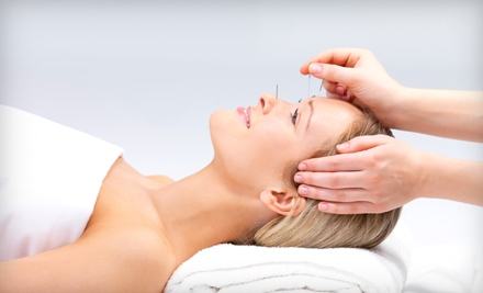 One Acupuncture Treatment (a $90 value) - Bergen County Acupuncture Center in Rochelle Park
