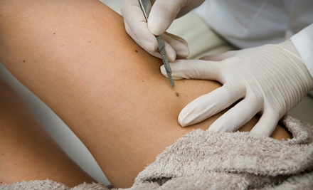 Removal of 1 Benign Mole (a $450 value) - Clear Allergy Immunology Laser Center in Plano