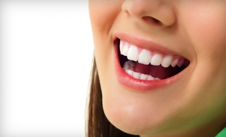 1 Frosting Teeth-Whitening Kit (a $165 value) - Ada's Skin Care and Salon in