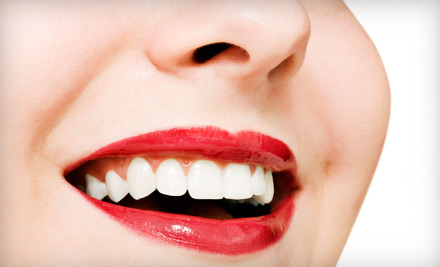 Endless Smile Dental Santa Ana Ca Groupon