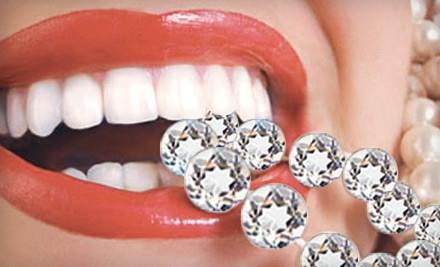 Icing Teeth Whitening - Bling Dental in