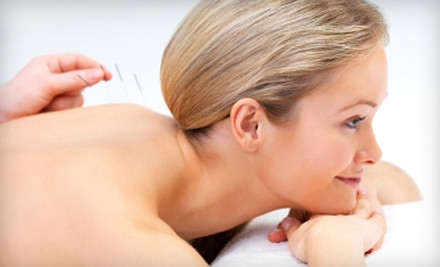 One 90-Minute Acupuncture Session (a $120 value) - Legacy Wellness in Minneapolis