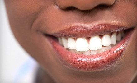 Sapphire Teeth-Whitening Session and Initial Exam for 1 Person (a $361 value) - Faircourt Dental Smile Enhancement Studio  in Grosse Pointe Woods