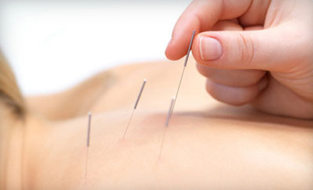 60-Minute Full-Body Acupuncture Treatment (a $125 value) - Alternative Health Care Concepts in Toluca Lake