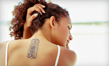 1 Laser Tattoo-Removal Session for an Area of Up to 9 Square Inches (a $228 value) - BodyAnew MedSpa in Houston