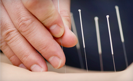 Two 60-Minute Acupuncture Treatments - Community Acupuncture of Marin in Novato