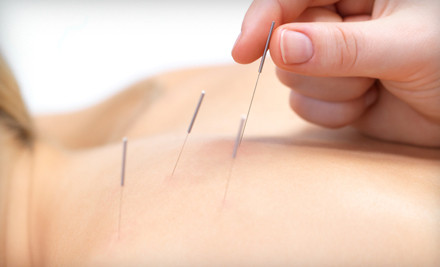 One Acupuncture Consultation and Treatment ($60 Value)  - Master Lu's Health Center in Salt Lake City