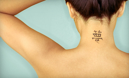Tattoo laser removal deals tattoo removal chicago cost for Laser tattoo removal chicago