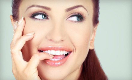 One 45-minute in-office teeth whitening session and one home maintenance kit - San Diego's Teeth Whitening Center in San Diego